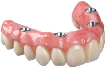 Протезы верхних зубов