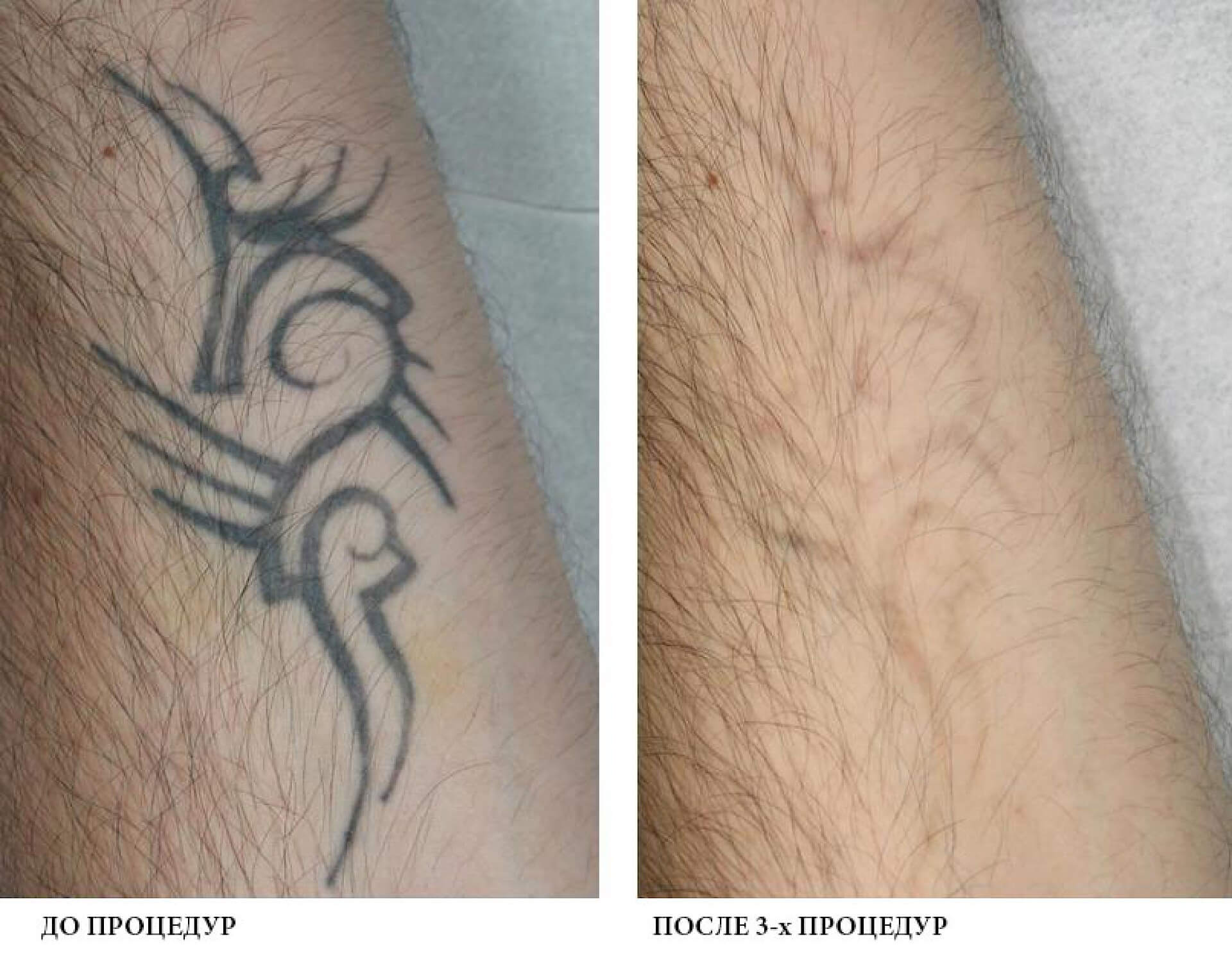 Лазерне видалення татуювання
