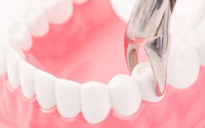 Вирвати зуб