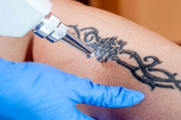 Видалення татуювання