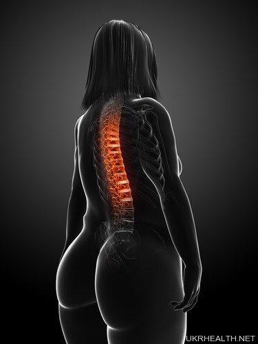 Хребет і зайва вага: чи є зв'язок?