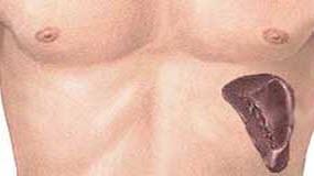 лімфома селезінки