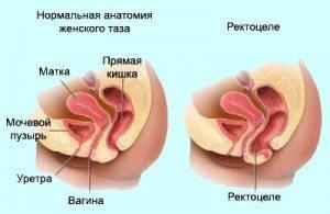 ректоцеле