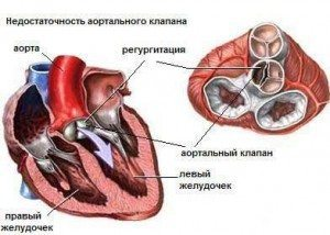 аортальна недостатність