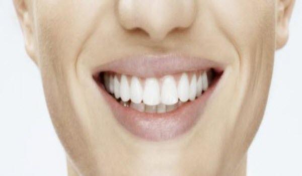голлівудська усмішка