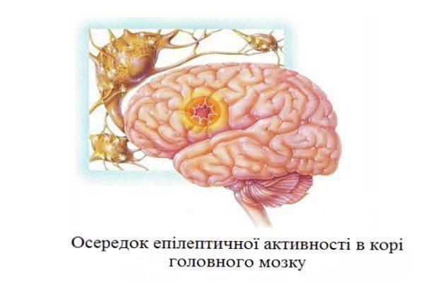 епілепсія