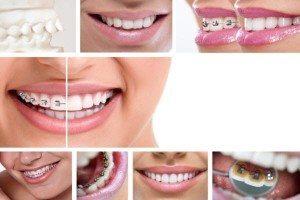 Сучасні методики корекції зубів