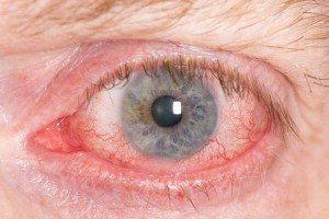 Почервоніня очей