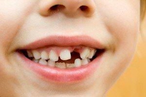 дефекти зубів