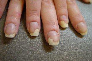 Відшарування нігтьової пластини