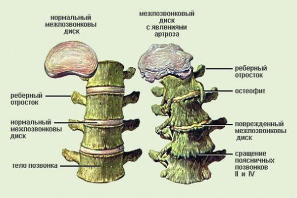 Класифікація сколіозу за ступенем відхилення від норми