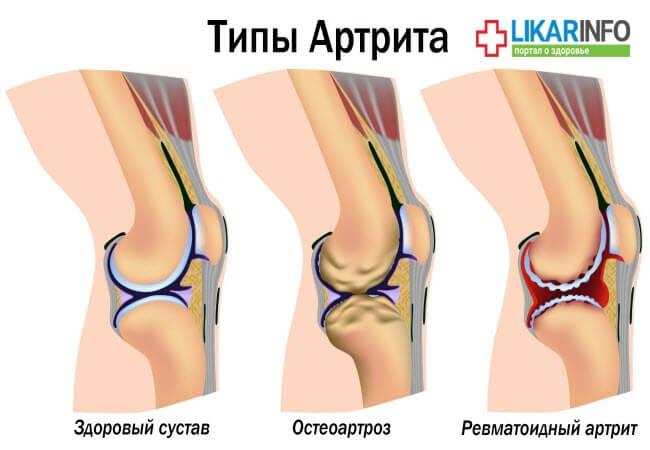 Типи артриту